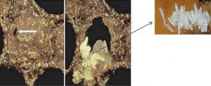 Figura 6. Ovos de A. tumida em células de crias. A seta branca indica a abertura no opérculo, por onde a fêmea do besouro fez a oviposição. Os ovos são mostrados em detalhe, à direita. Foto: cedida por Delaplane, K (University of Georgia Extension Bulletin, 2011. Foto detalhe por Neumann, P. University of Bern.